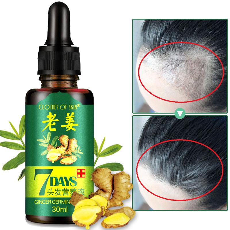 Za hitrejšo rast las SERUM Regrow - Ingver - čudežna in zdravilna rastlina